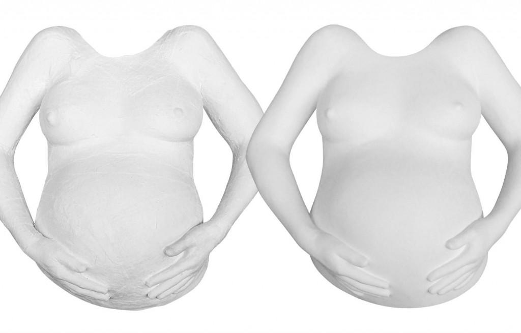 Gipsabdruck mit beiden Armen und Händen